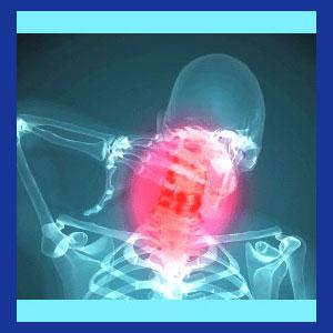 Neck pain diagnosis