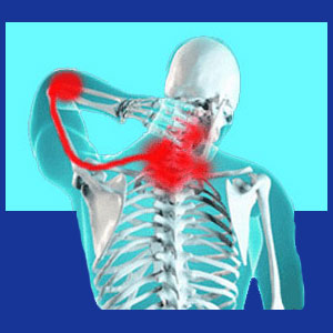 Pinched nerve neck pain