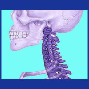 Ankylosing spondylitis in the neck