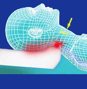 Anterior neck surgery