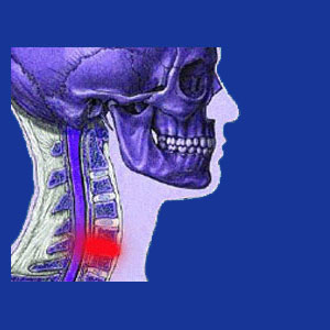 bulging disc in the neck