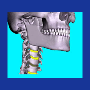 Cervical bone spurs
