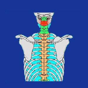 cervical disc extrusion