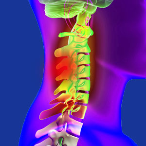 Cervical facet joint pain