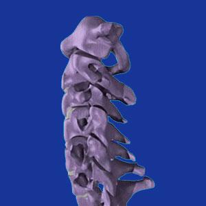Cervical foraminal stenosis
