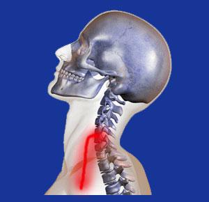 Cervical nerve compression