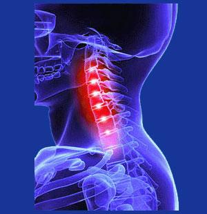 Chronic neck pain