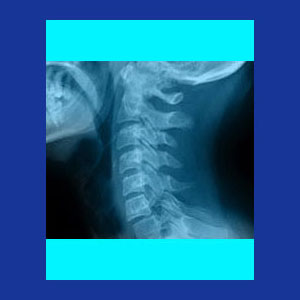 Degenerative disc disease neck pain