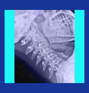 Facet joint neck pain