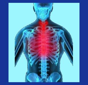 Heartburn neck pain