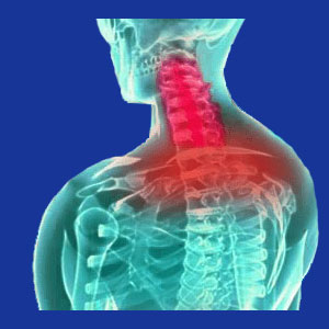 Loss of cervical lordosis