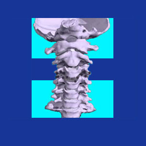 narrowed cervical spinal canal