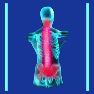 Neck and Lower Back Pain