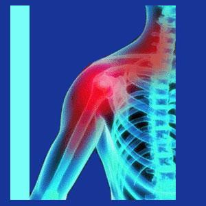 neck and shoulder pain  neck pain