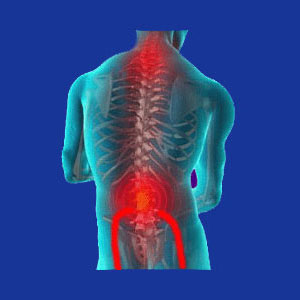 Neck pain and sciatica