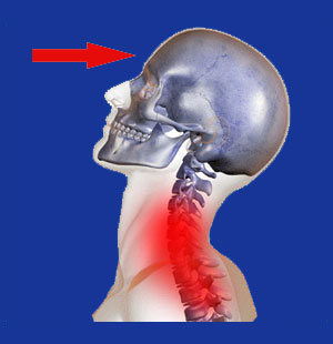 Neck Pain from Pressure on Forehead