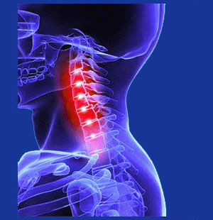 Osteoarthritis in the cervical spine