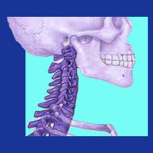 Osteoporosis neck pain