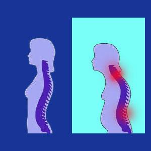 Posture neck pain