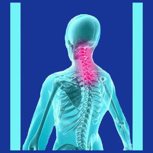 Relief from Cervical Spinal Stenosis