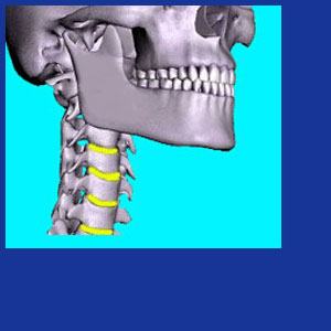 Reversal of cervical lordosis
