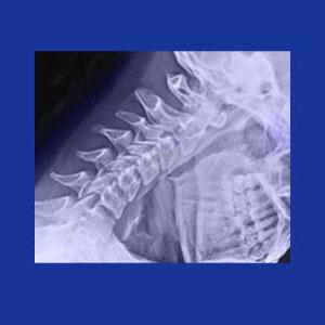 Rheumatoid arthritis in the neck