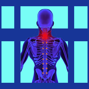 Tension myositis syndrome neck pain