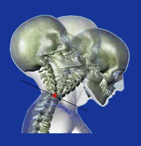 unstable cervical spine